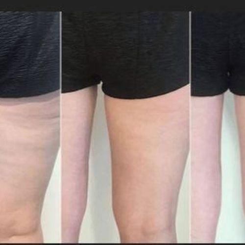 3 In 1 Ultrasonic Cavitation Slimming Beauty Device